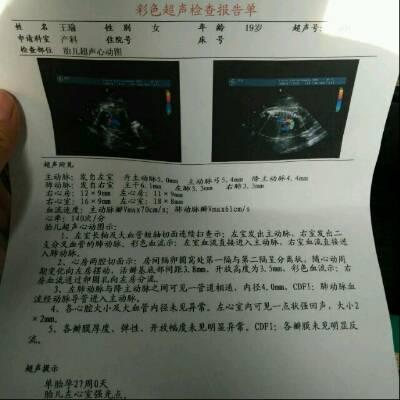 做四维查出来说胎儿左心脏有强光点, 然后去做