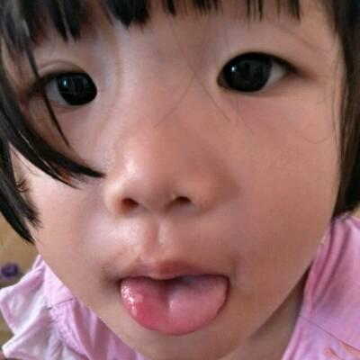 宝宝两岁了最近两天嘴巴里长了好几个溃疡怎么