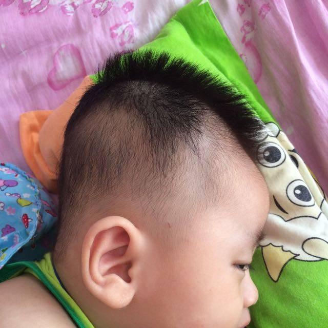 婴儿头型正常图_我家宝宝现在六个月近一个星期他老是爱侧身
