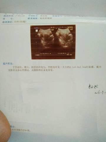 journal_insert_pic_586398507
