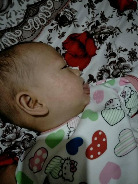我家宝宝的脸上有小米粒的一样小疙瘩 怎么办