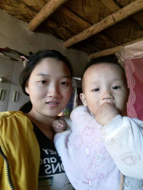 一岁宝宝回家一个月全身长了好多小红点,慢慢