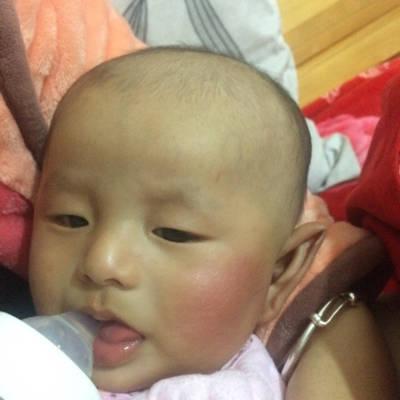 宝宝为什么一边脸红.而且用手触碰脸红的一边脸比较热