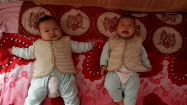 真心有没有掉发的_女生当妈a真心,生这两宝在医产后有里面硬胸块图片