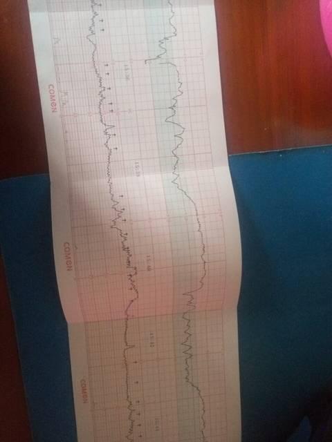 怀孕35周加3天,胎儿缺氧_今天去医院做检查,医