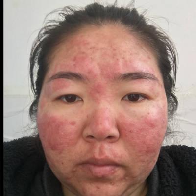怀孕80天,开始鼻子头变红,痒,起皮,现在两侧脸