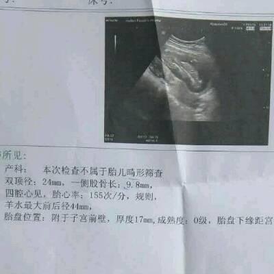 我怀孕三个月,去做B超,医生说宝宝腿短,之前有