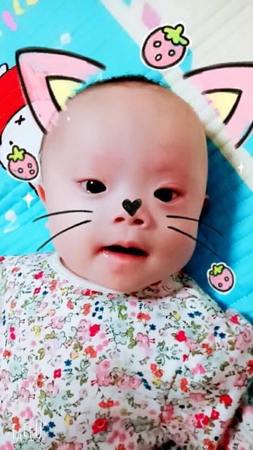 唐氏宝宝我们来讨论_我女儿是家里的二胎,出生