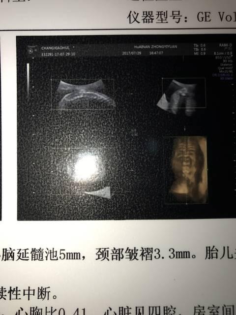 怀孕六个月,四维彩超检查孩子心脏十字交叉显示不清图片
