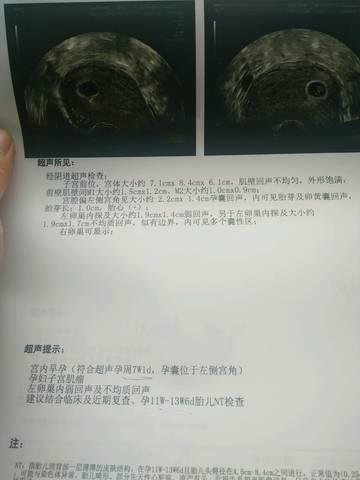 5.5号彩超偏左侧宫角,没管道胎芽,5.16彩超还偏三维胎心侧视图绘制图片