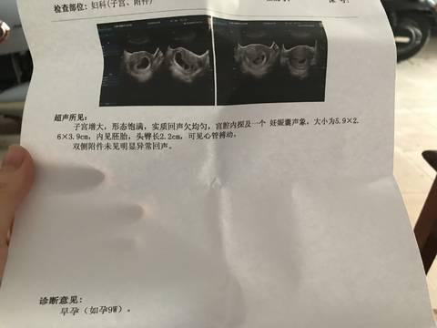 之前第一胎自然流产,隔一年意外怀孕,之前6周
