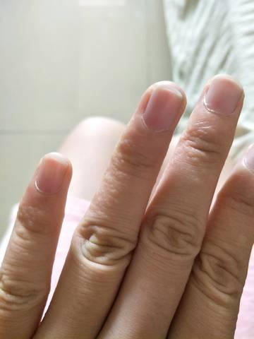 孕妇手脚长水泡,到底是脚气手气,还是湿疹?去