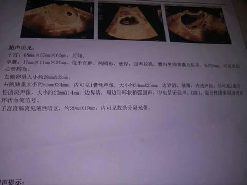 journal_insert_pic_1486965669
