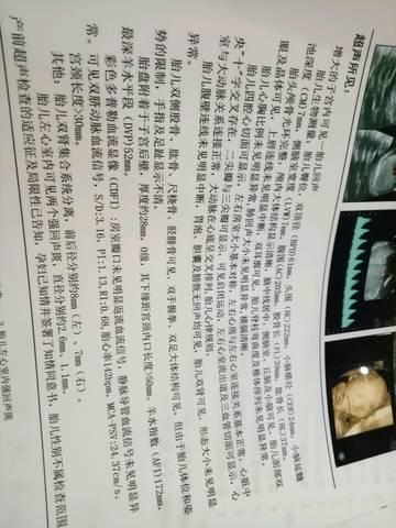 journal_insert_pic_792704764